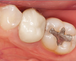 Mercury in dental amalgam.