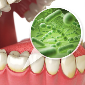 The Secret to Preventing Gum Disease - Control Bacterial
