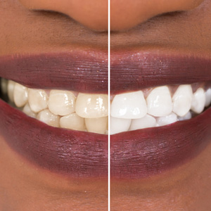 What You Should Know About A Home Teeth Whitening Kit Alliance