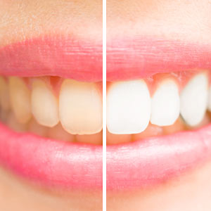 Be Sure to Have a Dental Exam Before Whitening Your Teeth - Groff Dental Studio