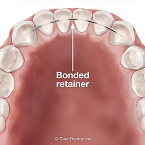 WhyaBondedRetainerMightbeaBetterChoiceAfterBraces