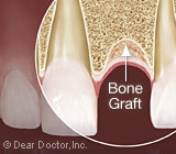 BoneGraftingforDentalImplants