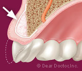 FourFactsaboutBoneGraftingforDentalImplants