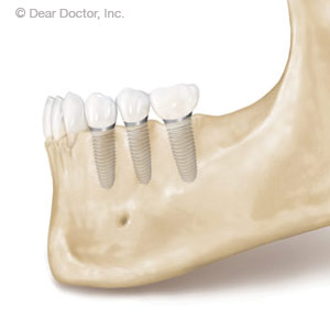 Dental Implants Maintain Bone Health Lawrence KS