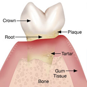 Bone Loss At The Roots Can Put Your Tooth In Danger Of Loss Executive Hills Dentistry