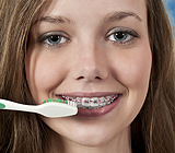 MaintainingGoodOralHygieneWhileWearingBraces