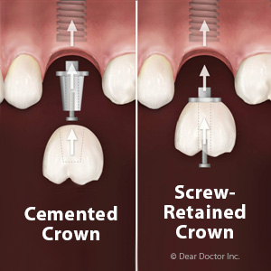 ChoosingaScreworCementtoAttachanImplantCrown