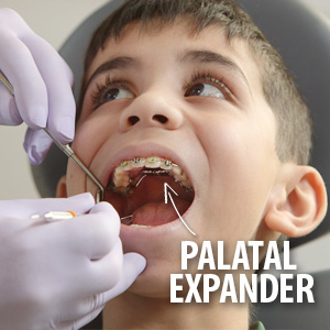 The Timely Use of a Palatal Expander Could Help Correct a Cross-Bite