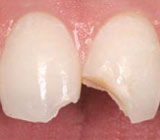 WhatstheBestRepairforaChippedTooth-CompositeResinorPorcelainVeneer