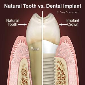 implants.