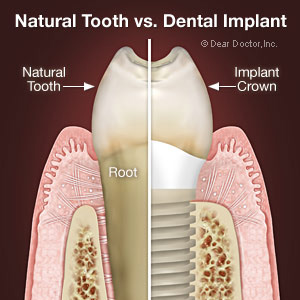 WhatsSoSpecialAboutDentalImplants