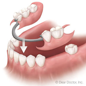 Can't Afford Dental Implants? Consider Partial Dentures - Milford