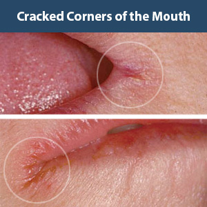 Cracked Mouth Corner Treatment
