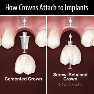 Cemented or Screwed Which Implant Crown Attachment is Best for You