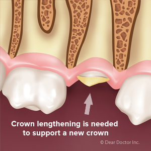 Crown Lengthening Opens up New Teeth Restoration Possibilities