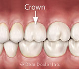 DentalCrownFAQs
