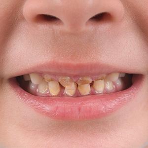 decay-baby-teeth-300.jpg