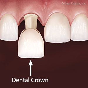 Crowns Could be the Smile Solution for Some Unattractive Teeth