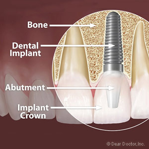dental implant.