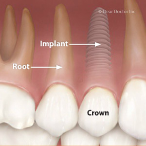 Dental Implant Considerations