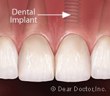 TheDifferencesBetweenOneandTwo-StageDentalImplants