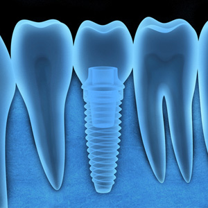 DentalImplantsCouldbeYourBestOptiontoReplaceLostTeeth