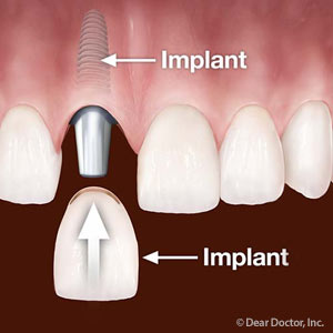 3PossibleTimingScenariosforGettingYourNewImplant