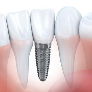 MoreThananewSmile-DentalImplantsHelpStopBoneLossasWell