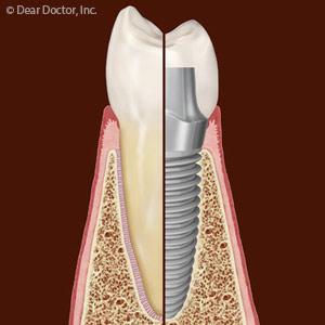 implant.