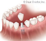 WhatstheRightAgeforDentalImplants