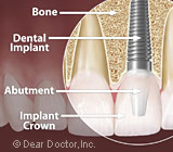 DentalImplantSurgeryisaRoutineWorry-FreeProcedure
