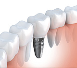 MajorBenefitsforToothReplacementWithDentalImplants