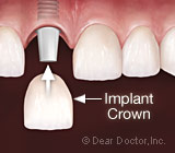 TestingyourKnowledgeDentalImplants