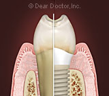 dental implants.