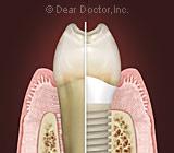 DentalImplantsQuiz