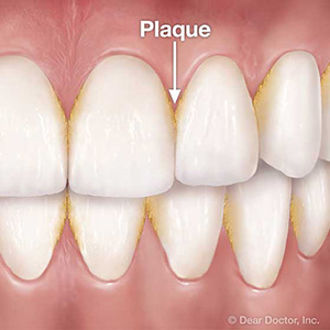 TacklingDentalPlaque