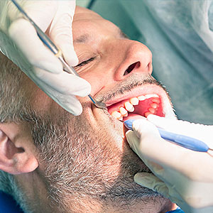 You Need a Dentist to Remove Tartar From Your Teeth - City Dental DC