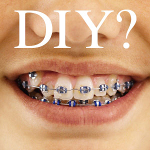 The Dangers of DIY Braces Image Dental