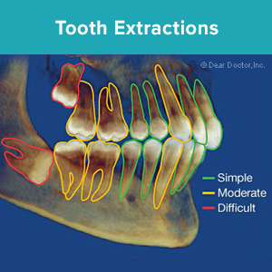 SimpleToothExtractionsareaCommonDentalProcedure