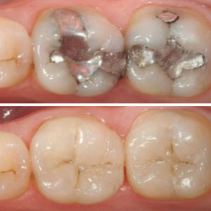 Tooth-ColoredFillingsProvideaViableAlternativetoDentalAmalgam