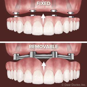 Fixed Or Removable Deciding Which Implant Supported