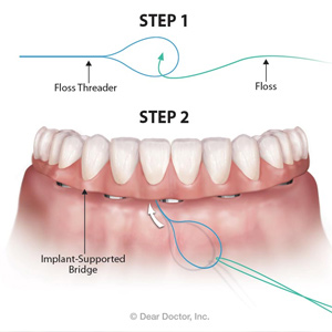 Flossing Daily Around Implants will Help Prevent Losing Your