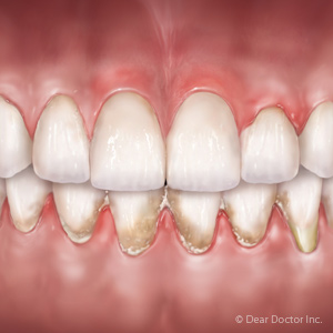 Your Gum Tissue Biotype Could Determine How Gum Disease