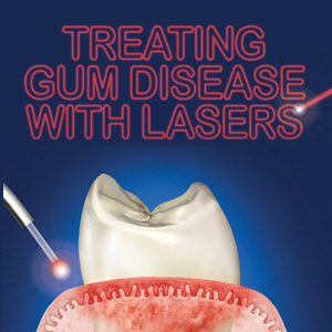 LasersPoisedtoTransformCurrentTreatmentforGumDisease