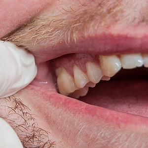 Watchforthese4SignsofGumDisease