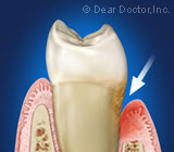 AdvancedPeriodontalDiseaseRequiresanAggressiveTreatmentStrategy