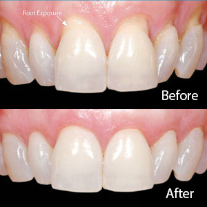 How to repair gums