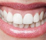 gummy smile.