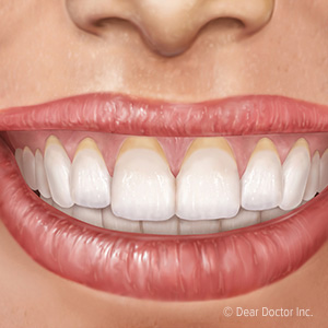 Recessed Gums Could Endanger Your Teeth Dyer Family Dentistry