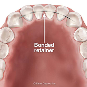 ABondedRetainerMightWorkforYouafterOrthodonticTreatment